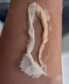 Fake wound